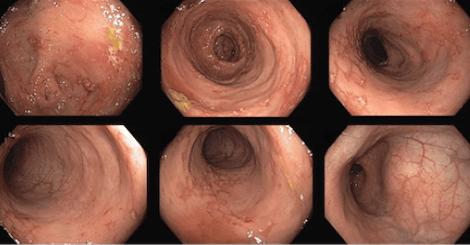 Efektivní léčba Crohnovy choroby vedolizumabem po selhání preparátů anti-TNF