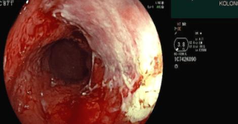 Vedolizumab v druhé linii terapie těžké Crohnovy choroby – intenzifikovaný režim