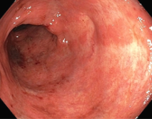Obr. 2 - zlepšení nálezu po 4. infuzi vedolizumabu (Mayo 2)