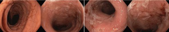 Koloskopie: edém, eroze, ulcerace, zánětlivé polypy vterénu pozánětlivých změn (zkrácený tubulizovaný tračník)