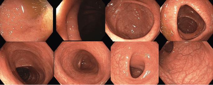 2019/3 Koloskopie: normální nález, slizniční zhojení, histologická remise