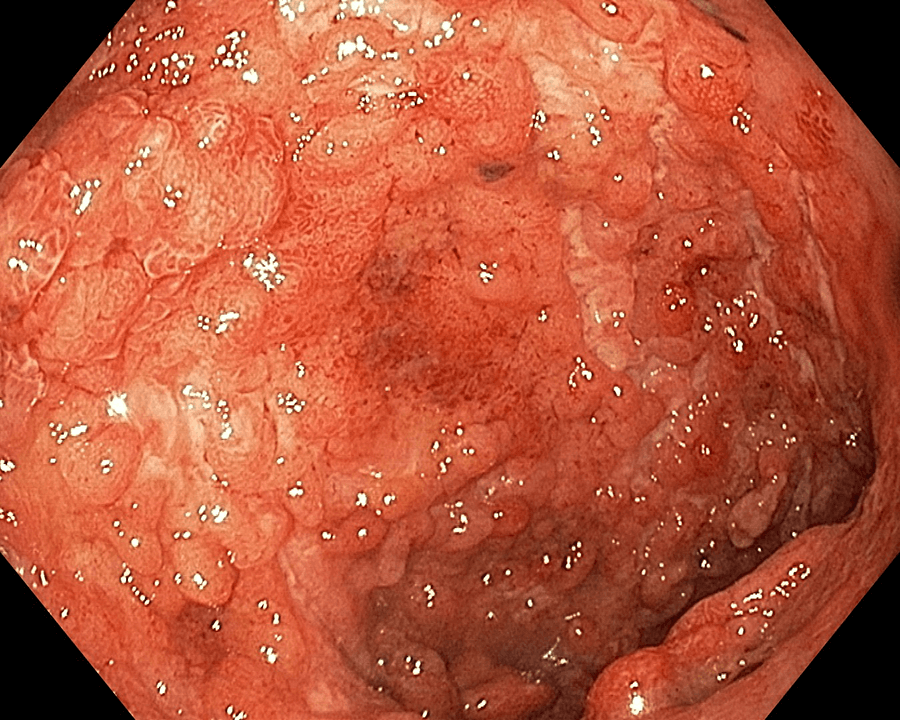 Foto č. 1: Předterapií vedolizumabem (6/2020)